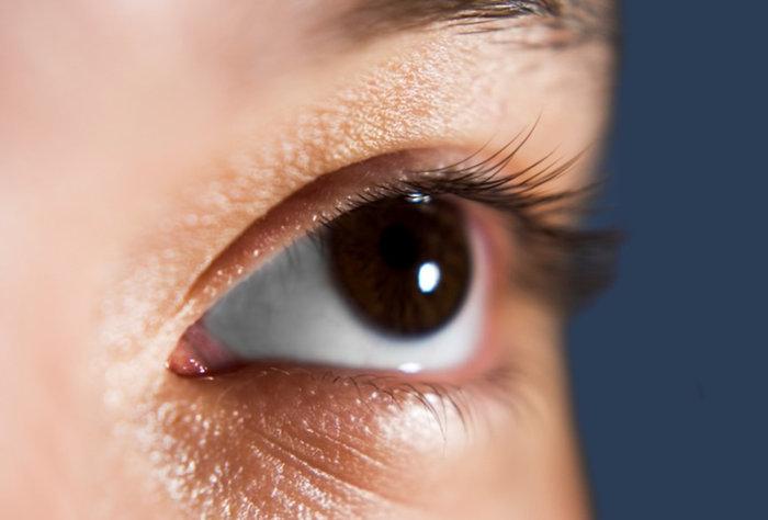 Cuidado con el Glaucoma