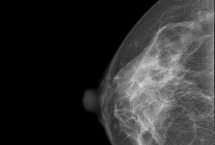 El Papanicolaou y la mamografía
