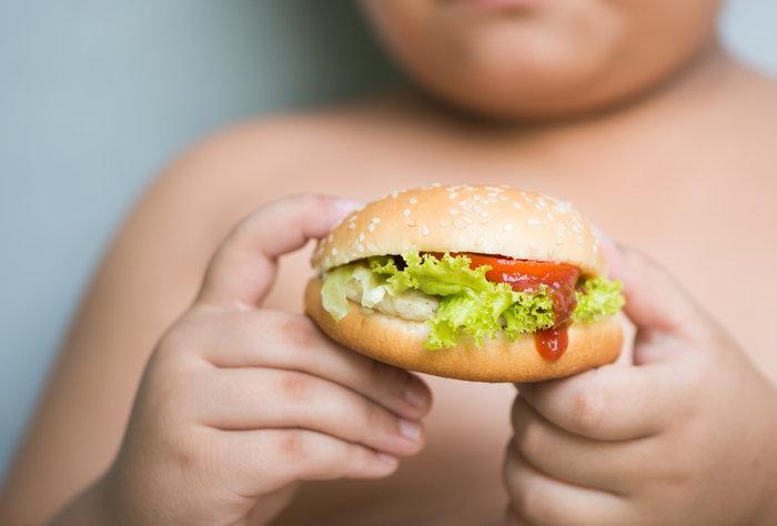Obesidad infantil. ¿Una epidemia?