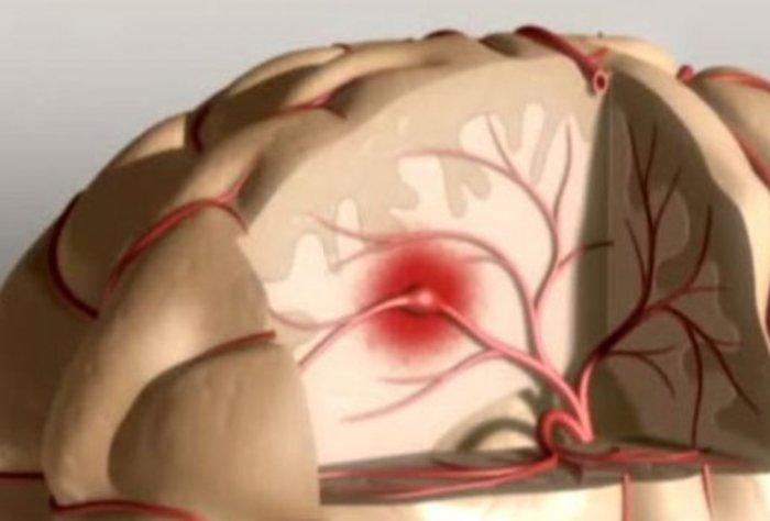 Accidente Cerebro Vascular Isquémico