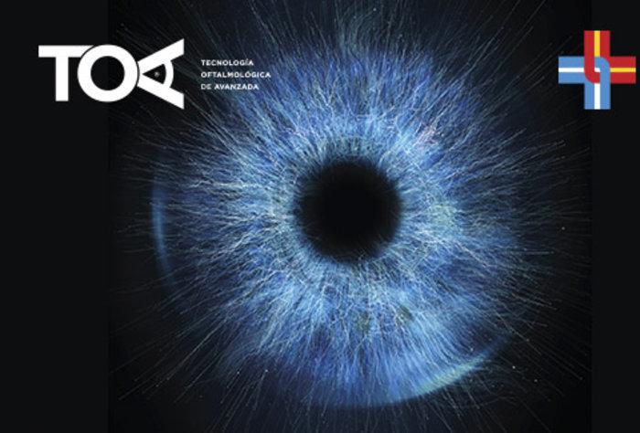 Tecnología Oftalmológica de Avanzada en la Asociación Española